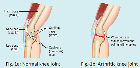 Know about your knee joint
