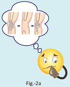 What actually is knee replacement?