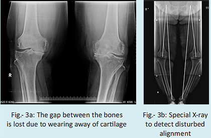 How does your doctor come to know that you need knee replacement?