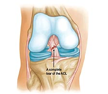 What happens if ACL is torn?